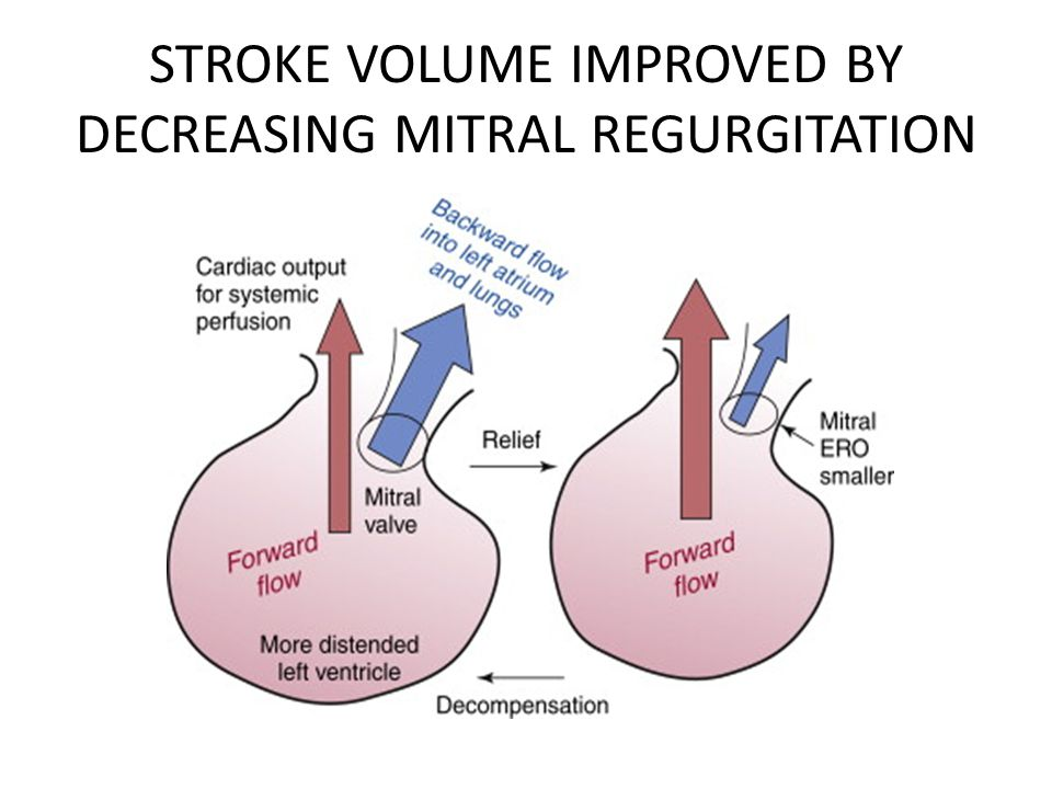 STROKE VOLUME IMPROVED BY DECREASING MITRAL REGURGITATION