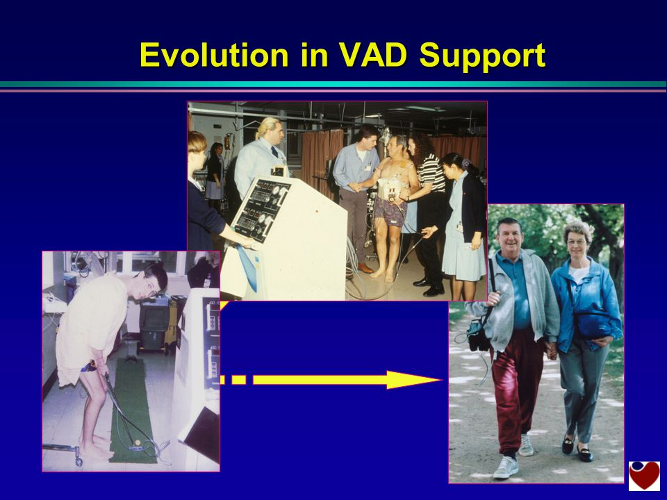 Thoratec in Intensive Care Evolution in VAD Support Novacor out of hospital Thoratec on the ward
