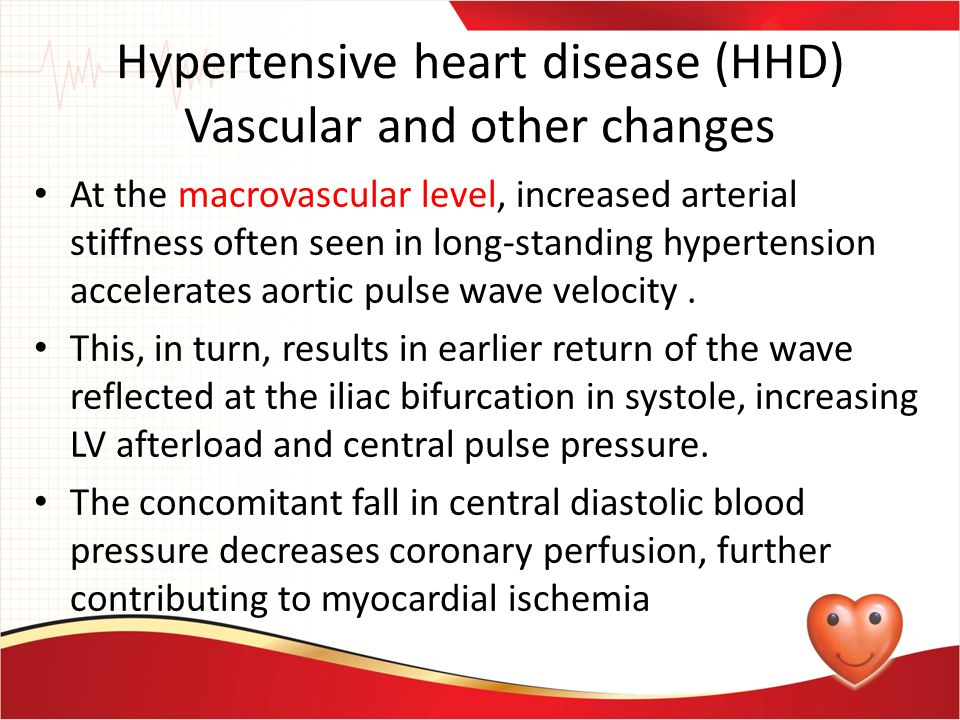 Hypertensive heart disease (HHD) Vascular and other changes At the macrovascular level, increased arterial stiffness often seen in long-standing hyper