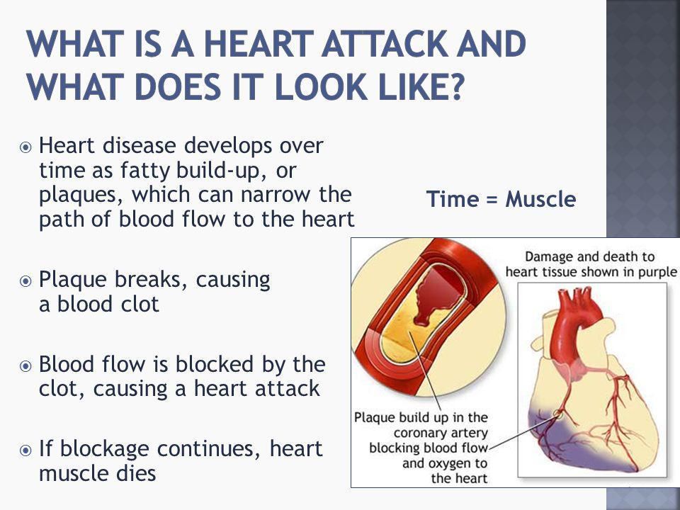  Chest pain or discomfort  Pain or discomfort in the jaw, neck or back  Feeling weak, lightheaded, faint or sweaty  Pain or discomfort in the arms or shoulders  Shortness of breath