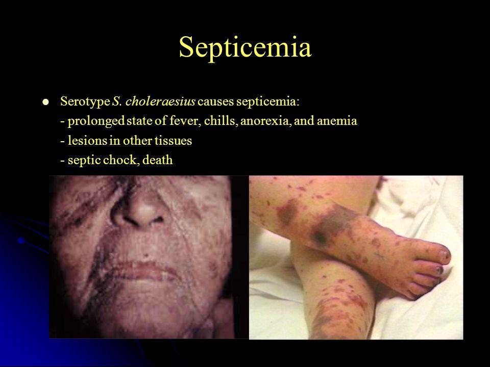 Septicemia Serotype S.