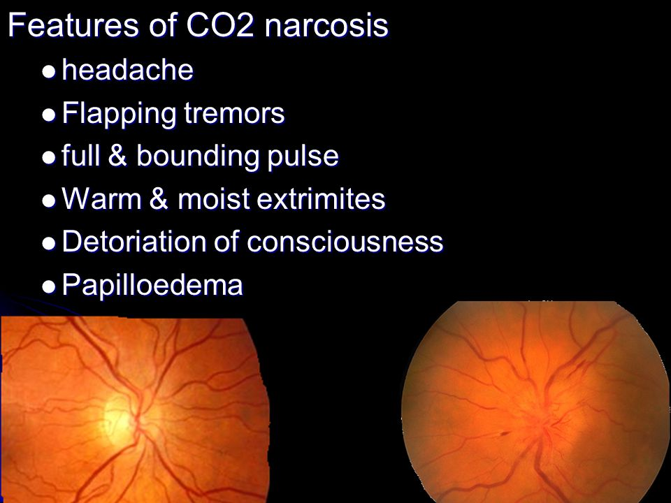 Features of CO2 narcosis headache headache Flapping tremors Flapping tremors full & bounding pulse full & bounding pulse Warm & moist extrimites Warm