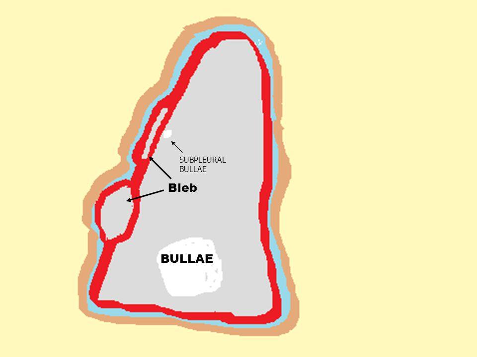 BULLAE SUBPLEURAL BULLAE Bleb