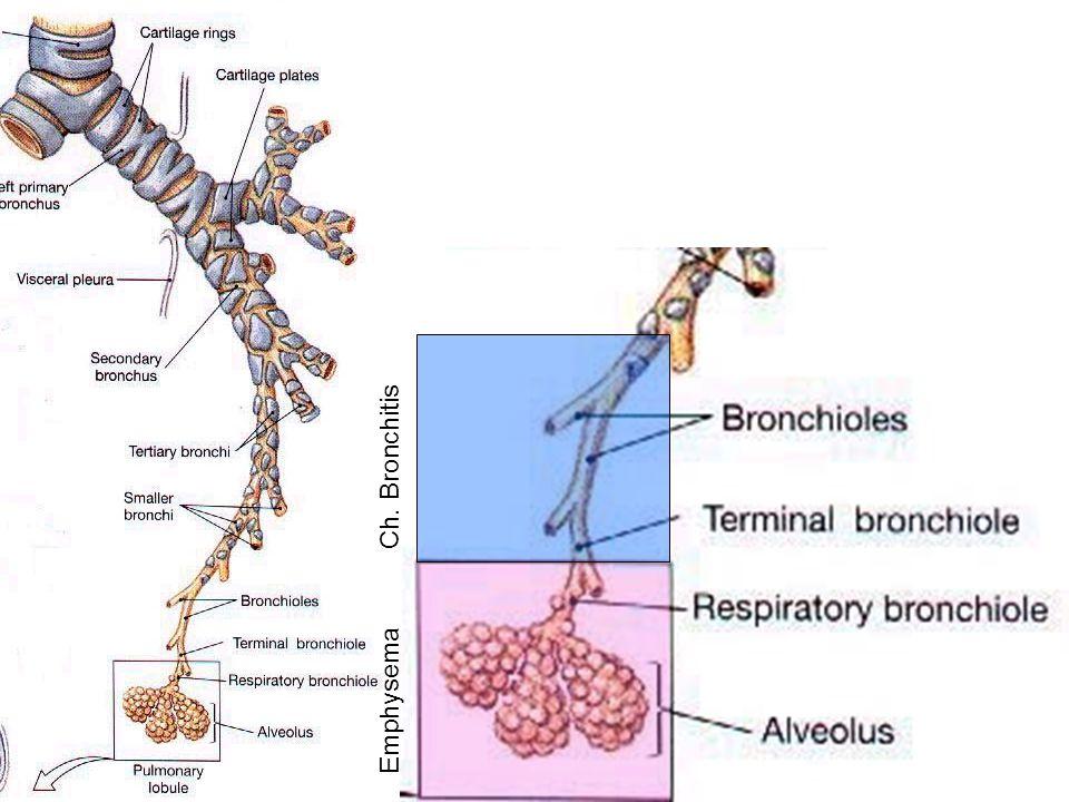 Ch. Bronchitis Emphysema