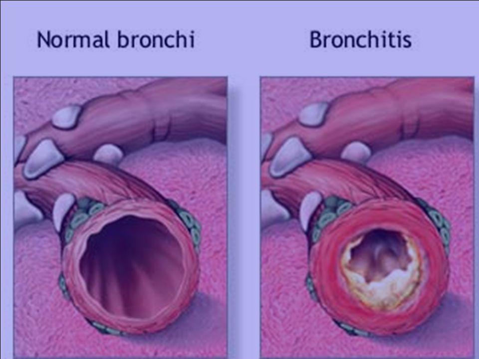 Barrel shaped chest Barrel shaped chest sternum more arched sternum more arched spine unduly concave spine unduly concave AP diam > Trans diamt (5 : 7) AP diam > Trans diamt (5 : 7) horizontal ribs horizontal ribs
