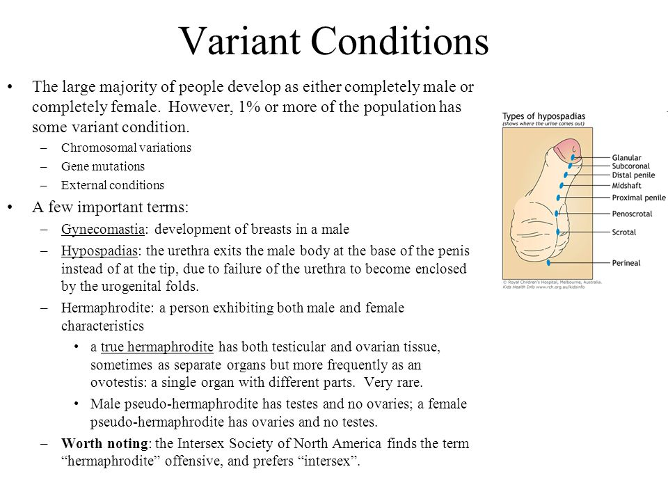 Variant Conditions The large majority of people develop as either completely male or completely female. However, 1% or more of the population has some