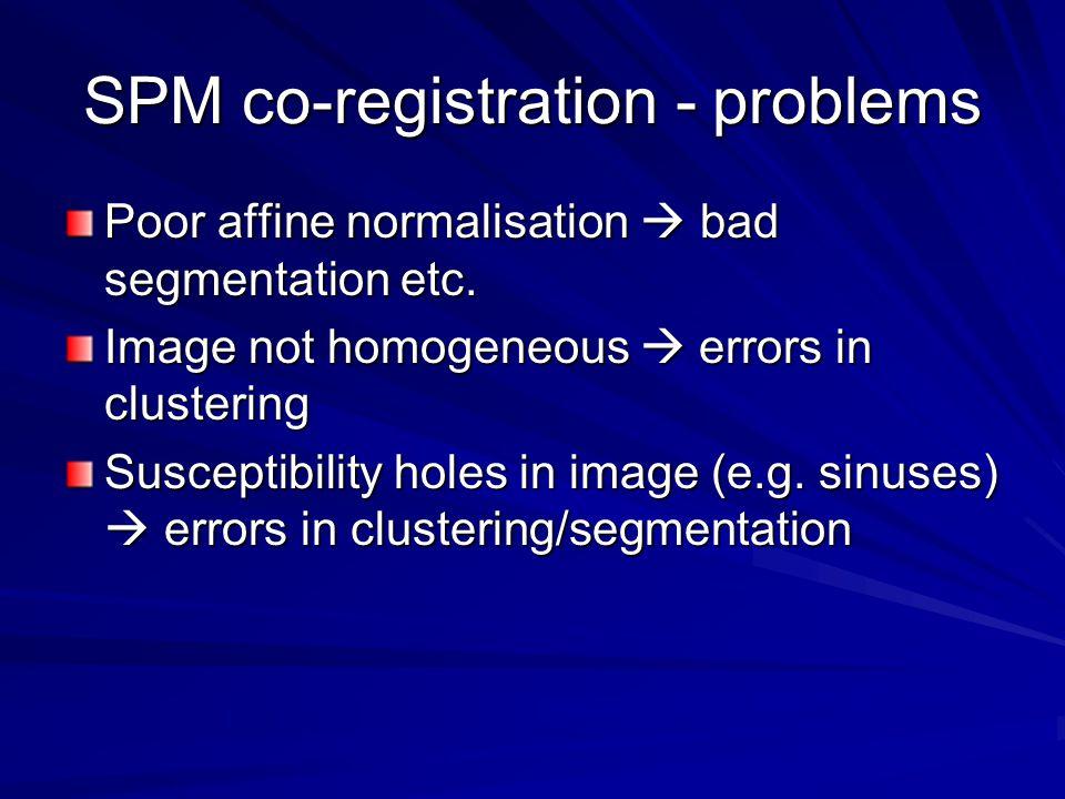 SPM co-registration - problems Poor affine normalisation  bad segmentation etc. Image not homogeneous  errors in clustering Susceptibility holes in