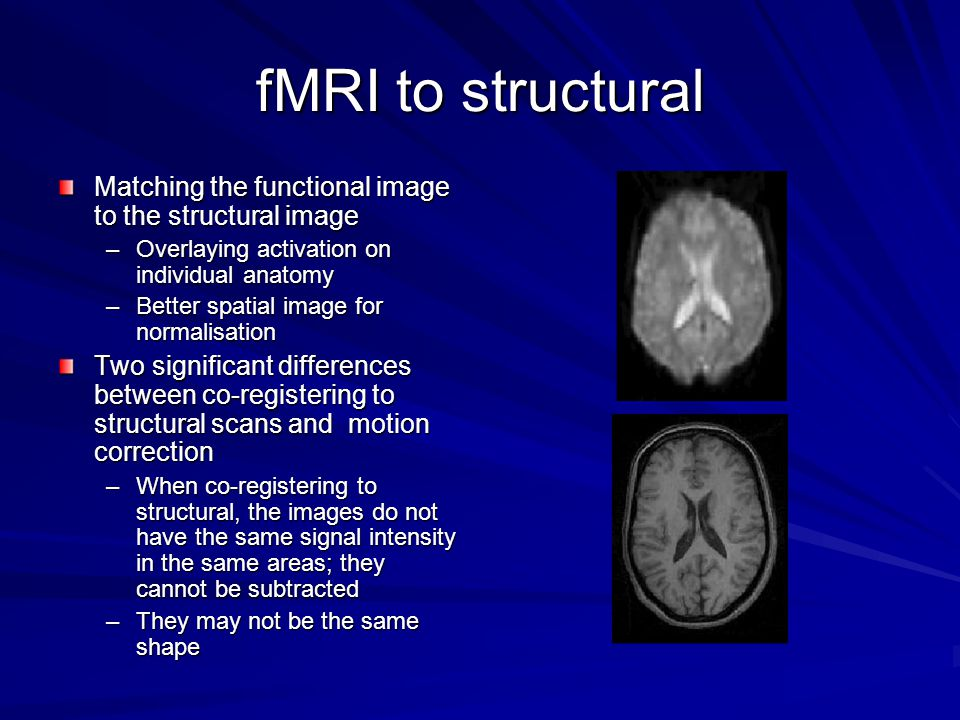fMRI to structural Matching the functional image to the structural image –Overlaying activation on individual anatomy –Better spatial image for normalisation Two significant differences between co-registering to structural scans and motion correction –When co-registering to structural, the images do not have the same signal intensity in the same areas; they cannot be subtracted –They may not be the same shape