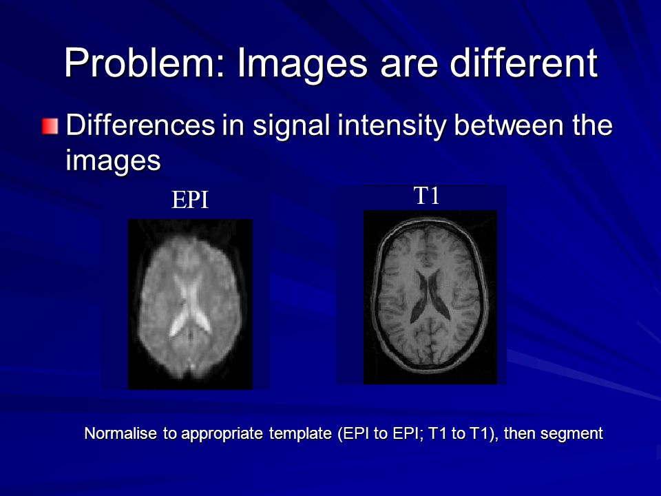 Problem: Images are different Differences in signal intensity between the images Normalise to appropriate template (EPI to EPI; T1 to T1), then segment