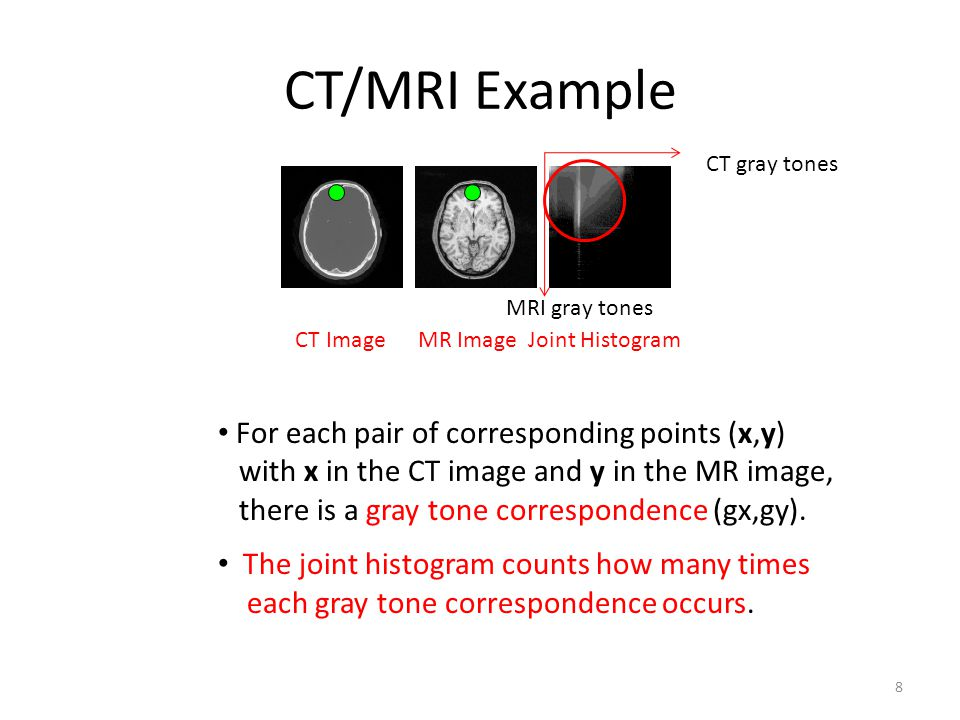 CT/MRI Example CT Image MR Image Joint Histogram CT gray tones MRI gray tones For each pair of corresponding points (x,y) with x in the CT image and y