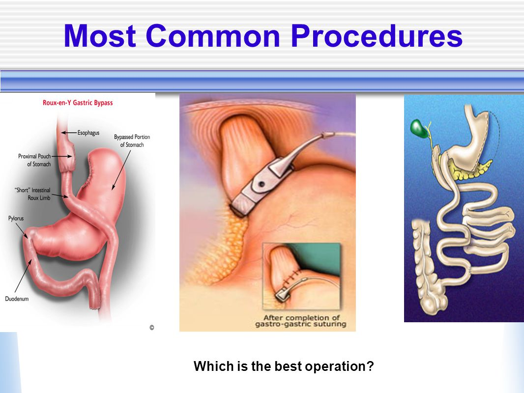 Most Common Procedures Which is the best operation