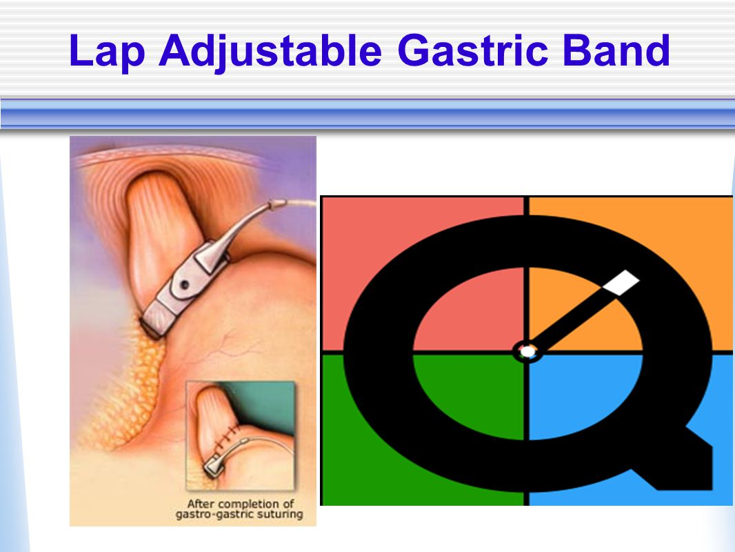 Lap Adjustable Gastric Band