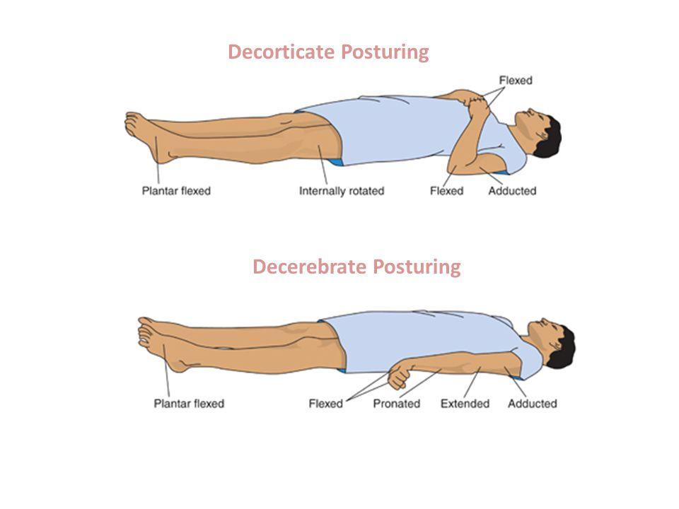 Decorticate Posturing Decerebrate Posturing