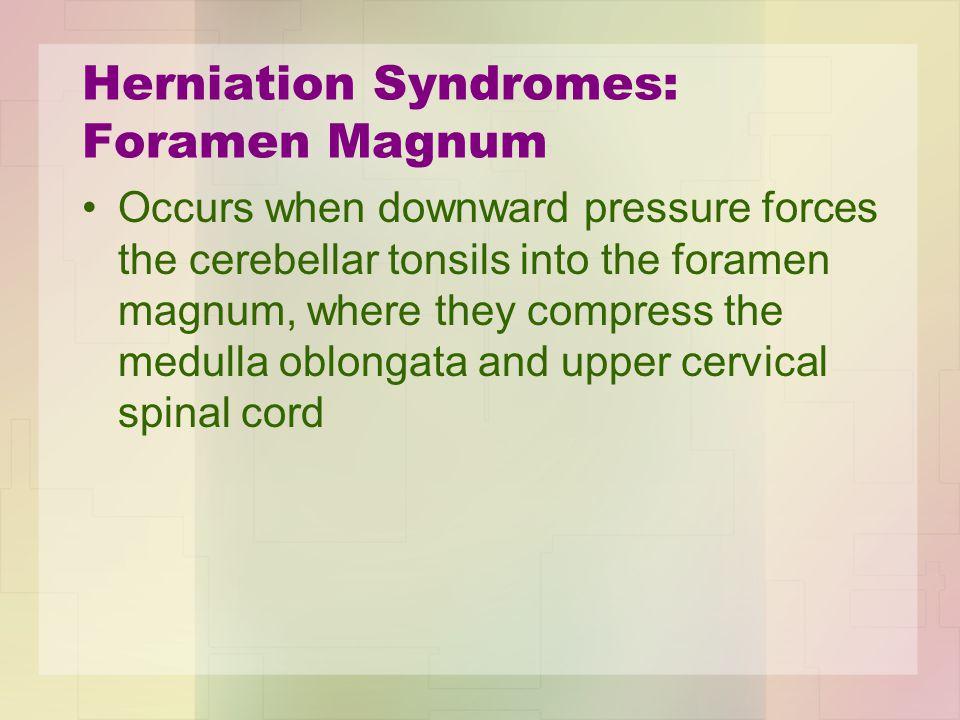 Herniation Syndromes: Foramen Magnum Occurs when downward pressure forces the cerebellar tonsils into the foramen magnum, where they compress the medu