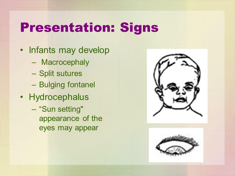 "Presentation: Signs Infants may develop – Macrocephaly –Split sutures –Bulging fontanel Hydrocephalus –""Sun setting"