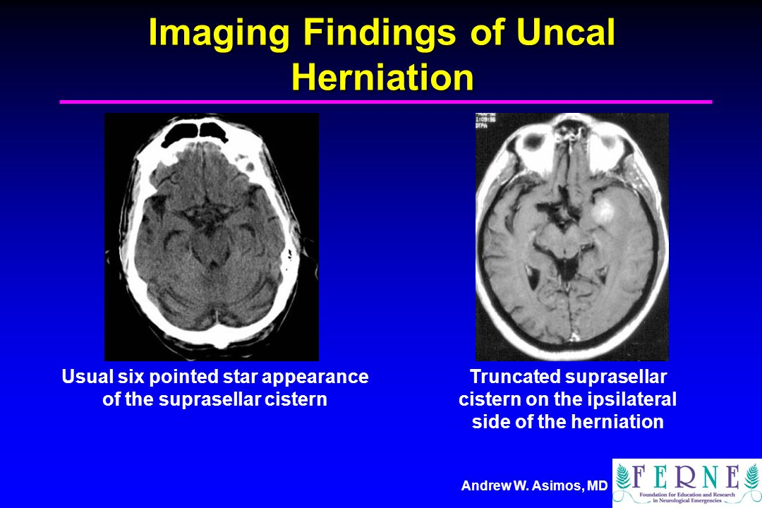 Andrew W. Asimos, MD Imaging Findings of Uncal Herniation Usual six pointed star appearance of the suprasellar cistern Truncated suprasellar cistern o