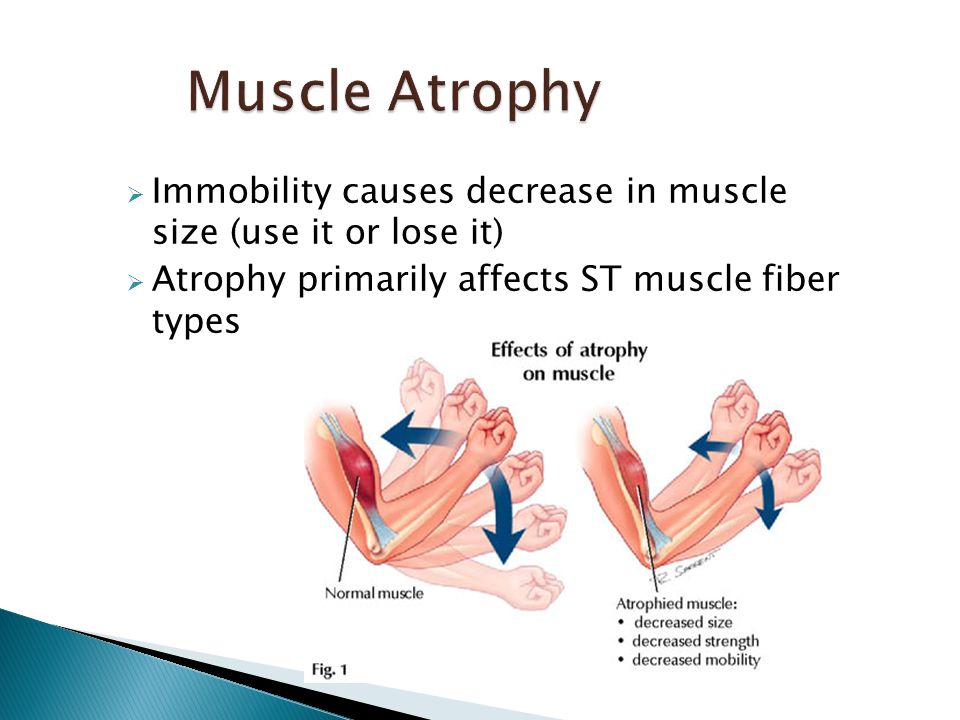  Immobility causes decrease in muscle size (use it or lose it)  Atrophy primarily affects ST muscle fiber types