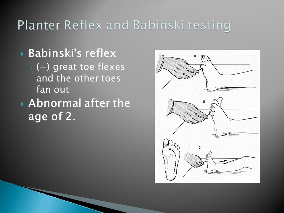  Babinski's reflex ◦ (+) great toe flexes and the other toes fan out  Abnormal after the age of 2.