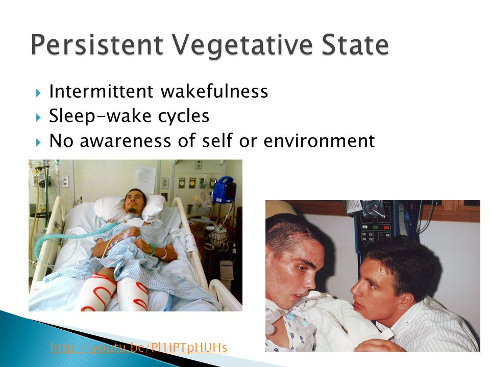  Intermittent wakefulness  Sleep-wake cycles  No awareness of self or environment http://youtu.be/Pl1IPTpHUHs