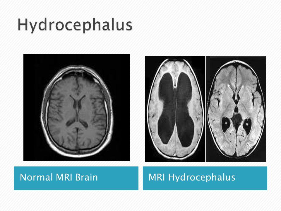 Normal MRI BrainMRI Hydrocephalus