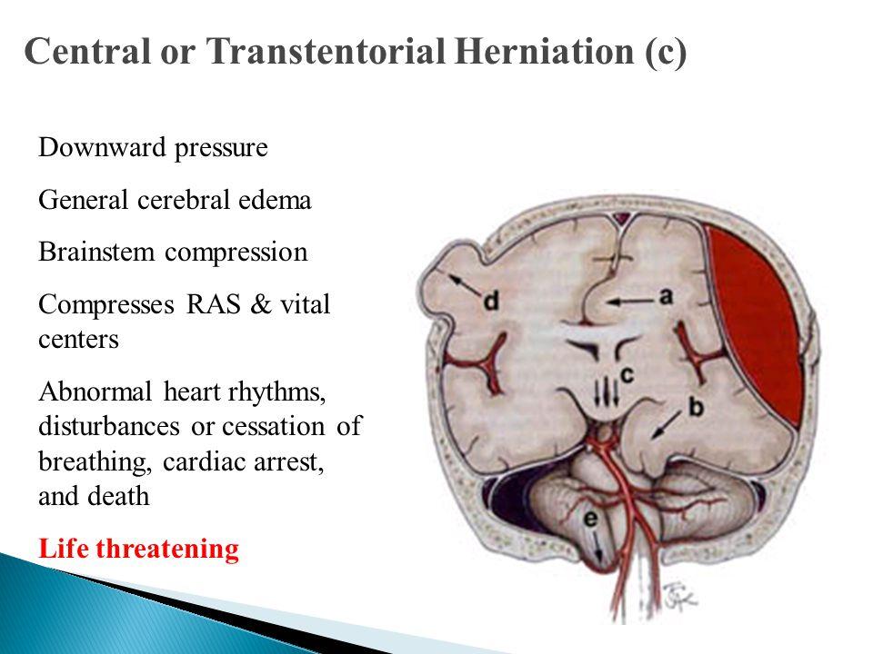 Central or Transtentorial Herniation (c) Downward pressure General cerebral edema Brainstem compression Compresses RAS & vital centers Abnormal heart