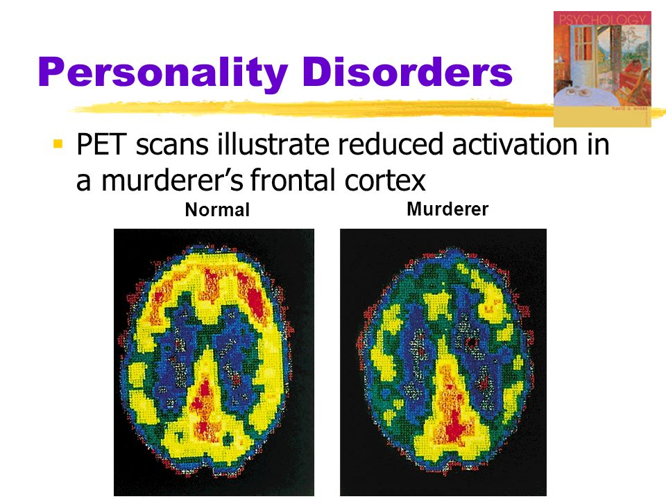 Personality Disorders  PET scans illustrate reduced activation in a murderer's frontal cortex Normal Murderer