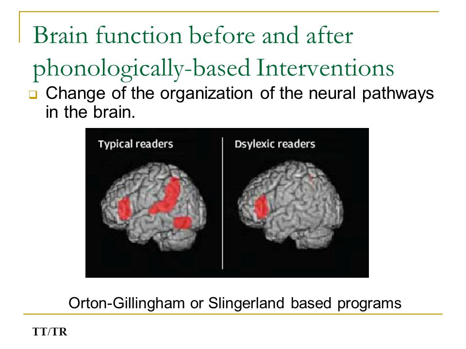Brain function before and after phonologically-based Interventions  Change of the organization of the neural pathways in the brain. Orton-Gillingham