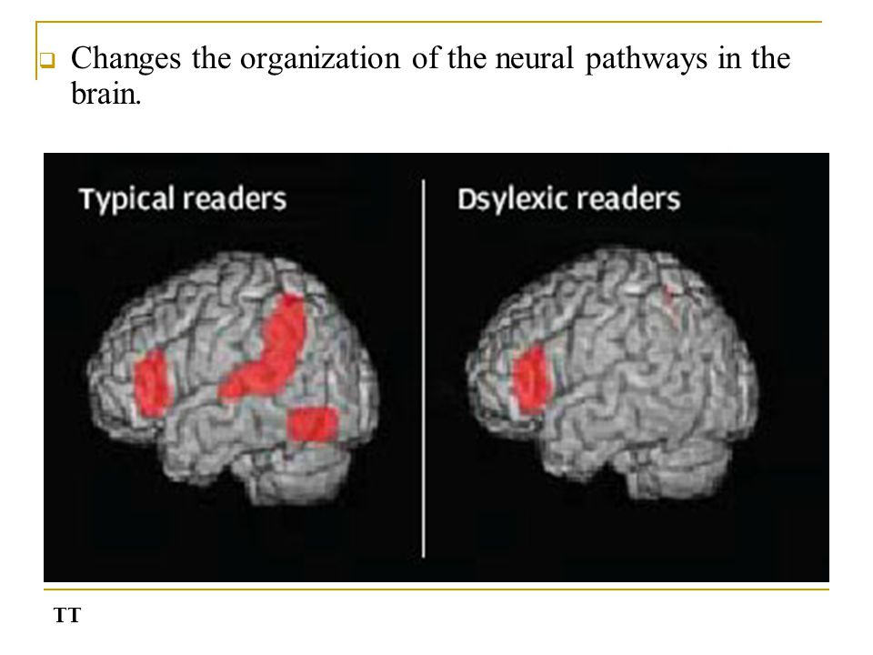  Changes the organization of the neural pathways in the brain. TT