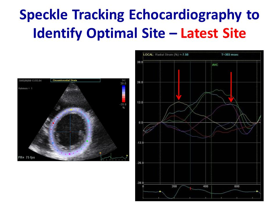 Speckle Tracking Echocardiography to Identify Optimal Site – Latest Site