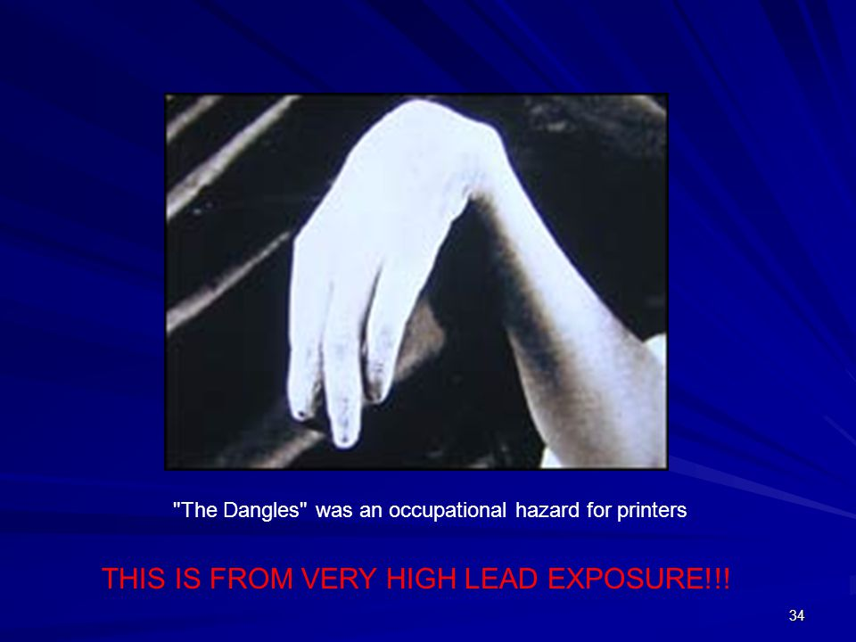 34 The Dangles was an occupational hazard for printers THIS IS FROM VERY HIGH LEAD EXPOSURE!!!