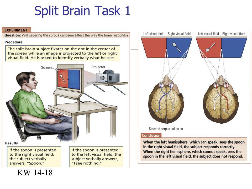 Split Brain Task 1 KW 14-18