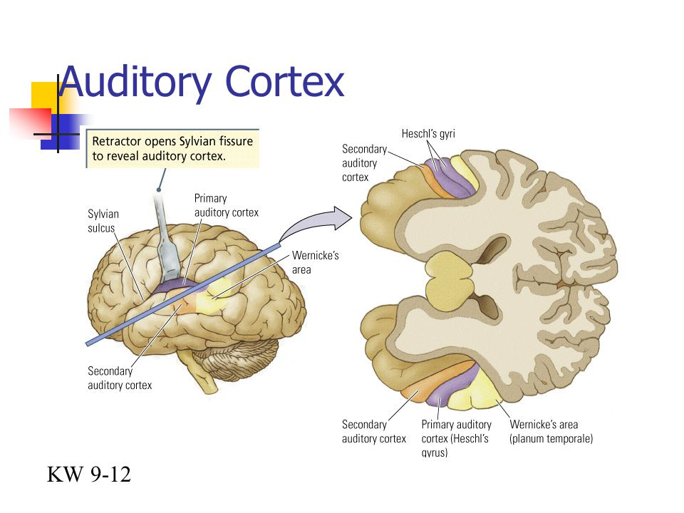 Auditory Cortex KW 9-12