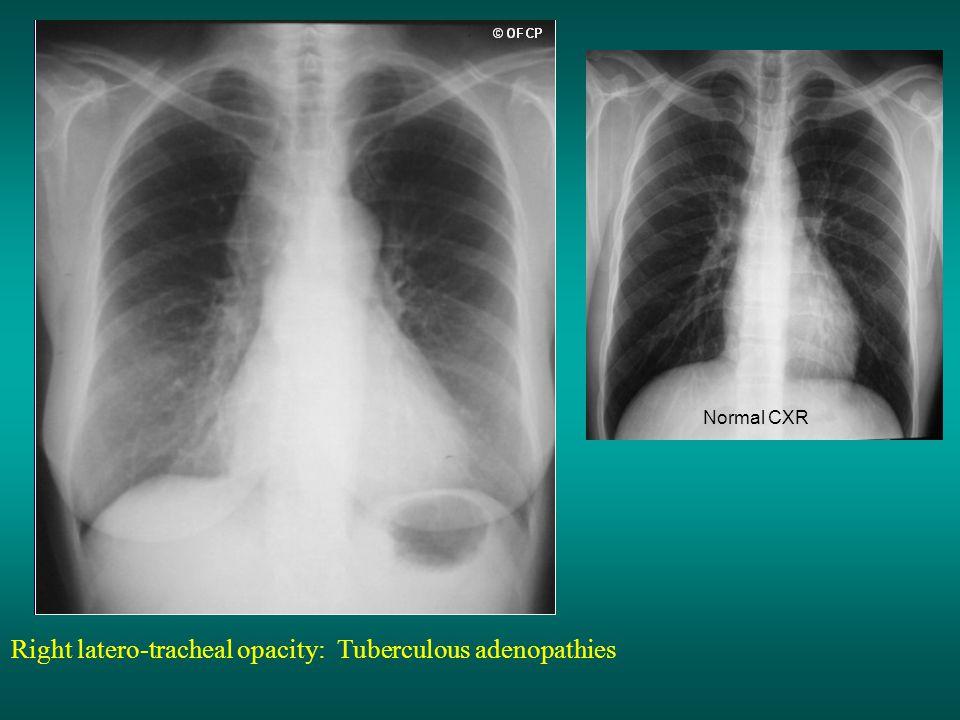 Right latero-tracheal opacity: Tuberculous adenopathies Normal CXR