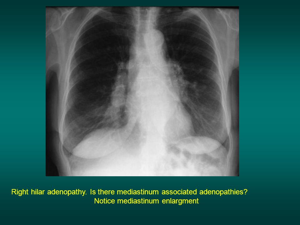 Right hilar adenopathy. Is there mediastinum associated adenopathies? Notice mediastinum enlargment