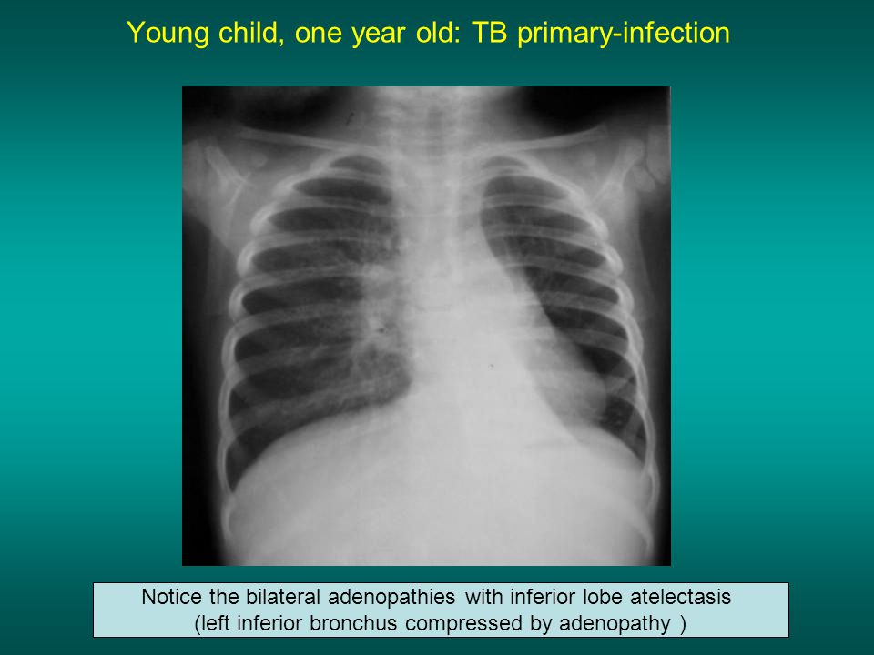 Young child, one year old: TB primary-infection Notice the bilateral adenopathies with inferior lobe atelectasis (left inferior bronchus compressed by