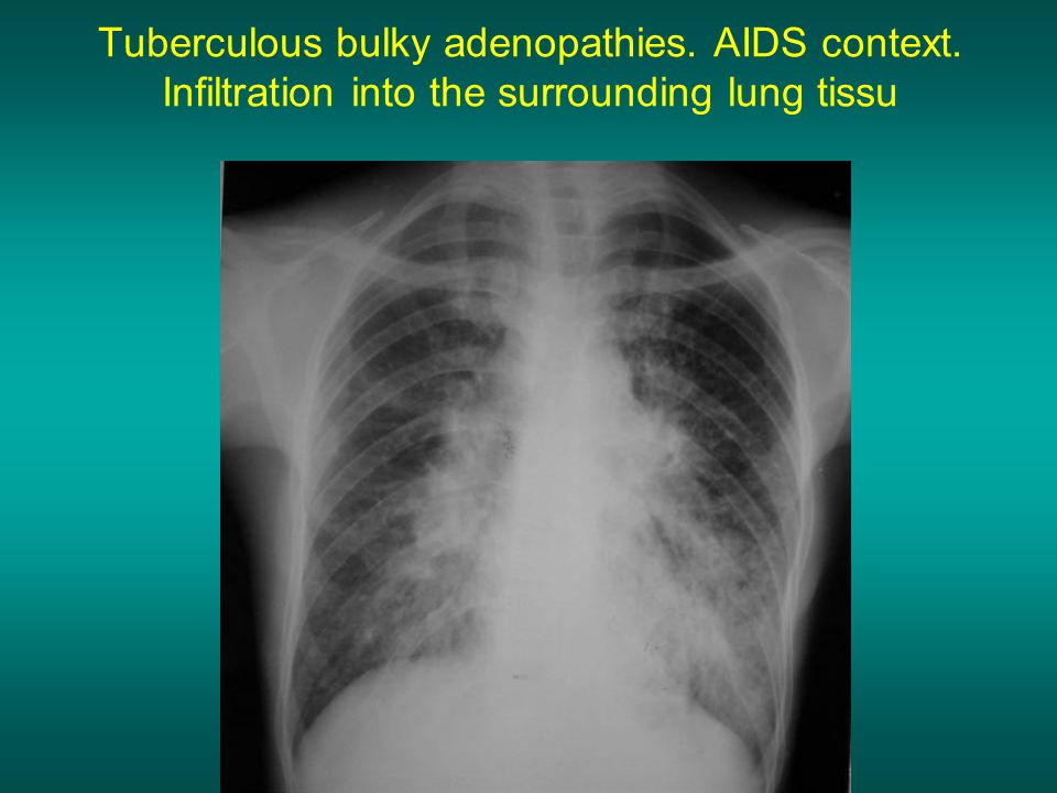Tuberculous bulky adenopathies. AIDS context. Infiltration into the surrounding lung tissu