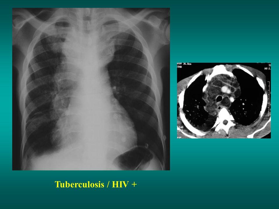 Tuberculosis / HIV +