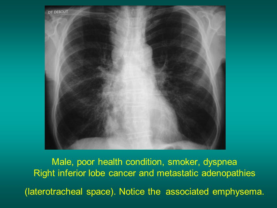 Male, poor health condition, smoker, dyspnea Right inferior lobe cancer and metastatic adenopathies (laterotracheal space). Notice the associated emph