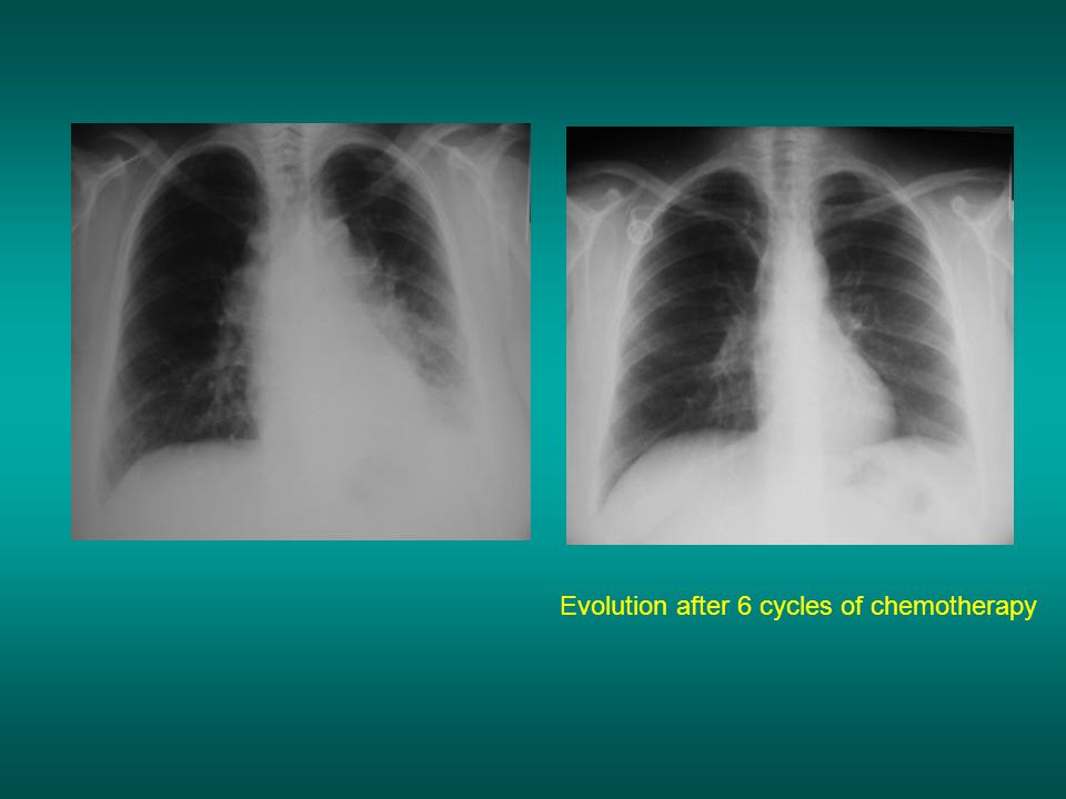 Evolution after 6 cycles of chemotherapy