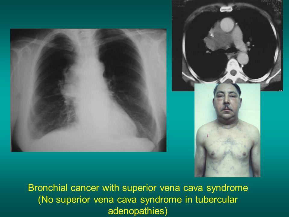 Bronchial cancer with superior vena cava syndrome (No superior vena cava syndrome in tubercular adenopathies)