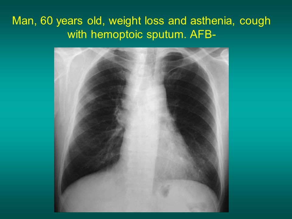 Man, 60 years old, weight loss and asthenia, cough with hemoptoic sputum. AFB-