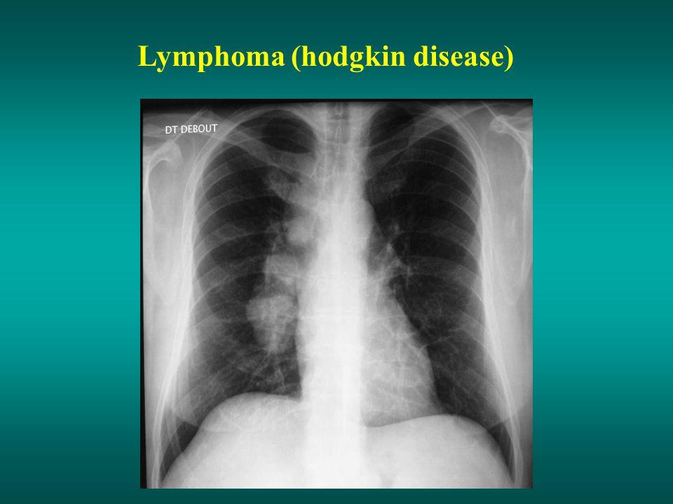 Lymphoma (hodgkin disease)