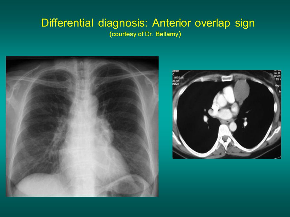 Differential diagnosis: Anterior overlap sign ( courtesy of Dr. Bellamy )