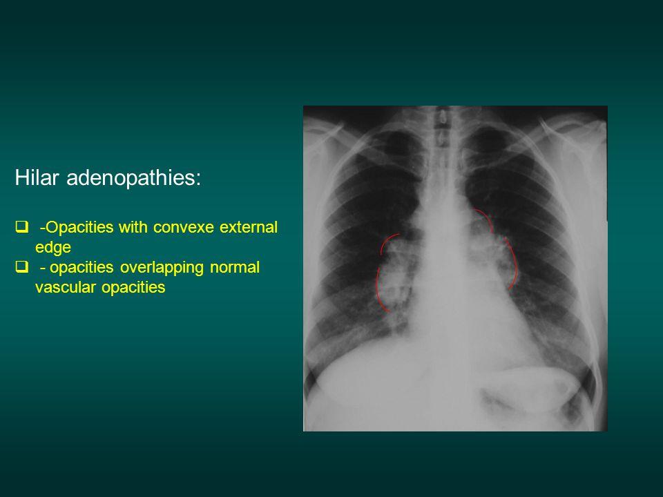 Hilar adenopathies:  -Opacities with convexe external edge  - opacities overlapping normal vascular opacities