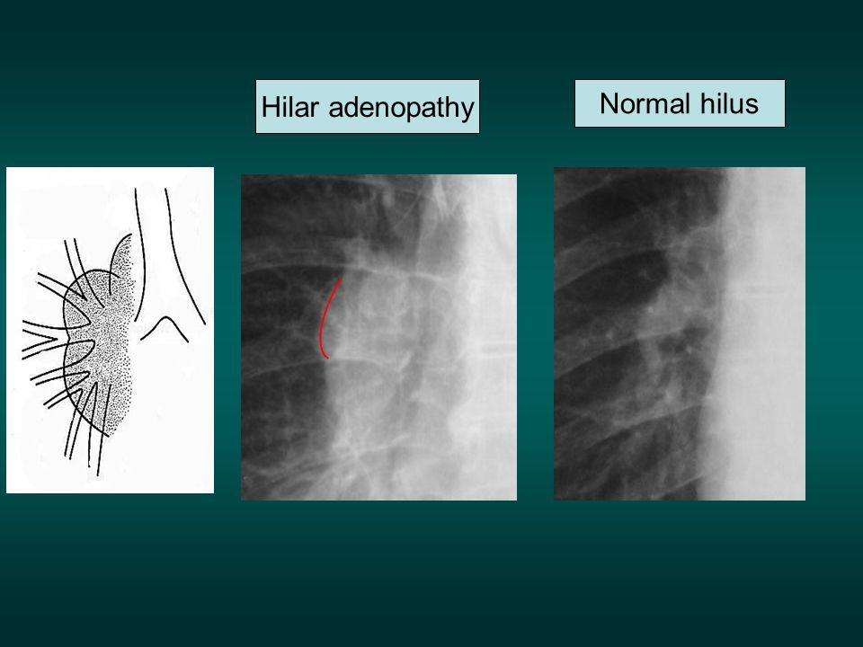 Hilar adenopathy Normal hilus