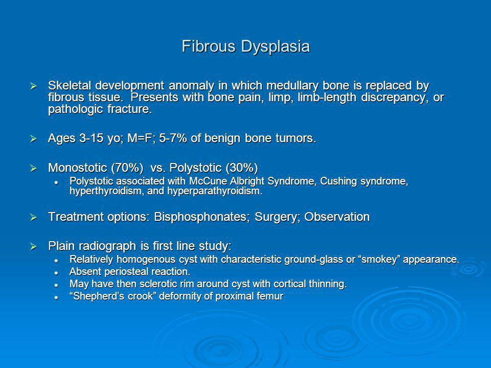 Fibrous Dysplasia  Skeletal development anomaly in which medullary bone is replaced by fibrous tissue.