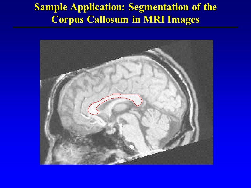 Sample Application: Segmentation of the Corpus Callosum in MRI Images