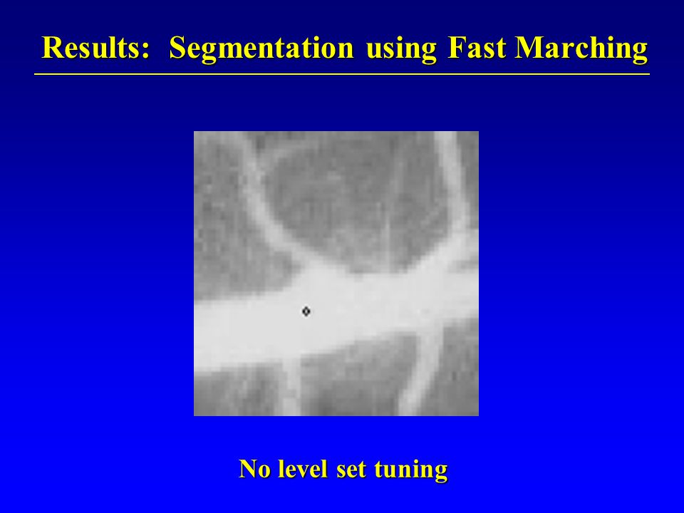Results: Segmentation using Fast Marching No level set tuning No level set tuning