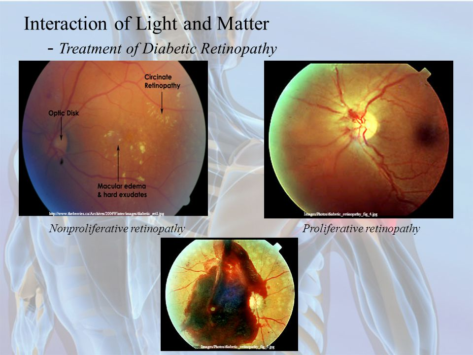 Interaction of Light and Matter - Treatment of Diabetic Retinopathy http://www.theberries.ca/Archives/2006Winter/images/diabetic_ret1.jpg Nonproliferative retinopathy http://www.neec.com/Images/Photos/diabetic_retinopathy_fig_4.jpg Proliferative retinopathy http://www.neec.com/Images/Photos/diabetic_retinopathy_fig_5.jpg
