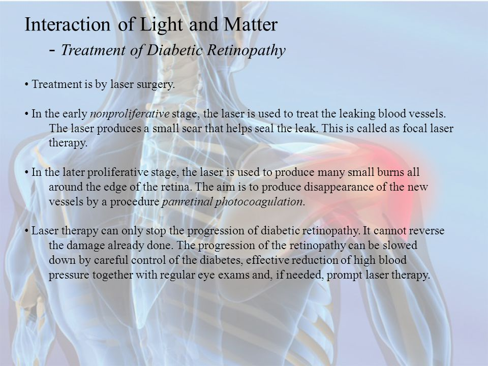 Interaction of Light and Matter - Treatment of Diabetic Retinopathy Treatment is by laser surgery.